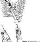Ligadura con banda elástica