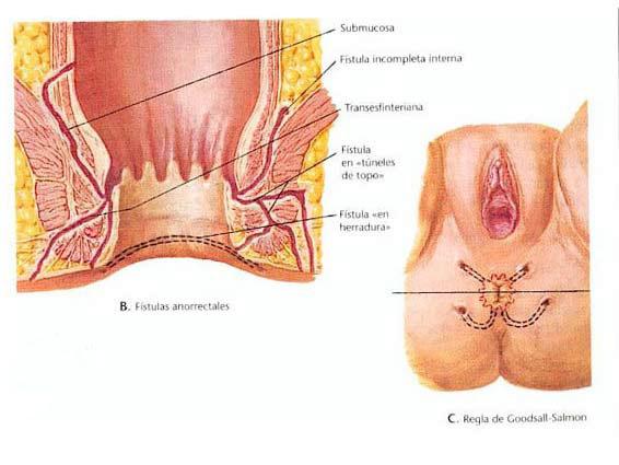 condilomas anales porque se producen