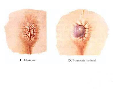 La tromboflebitis de la recomendación del tratamiento