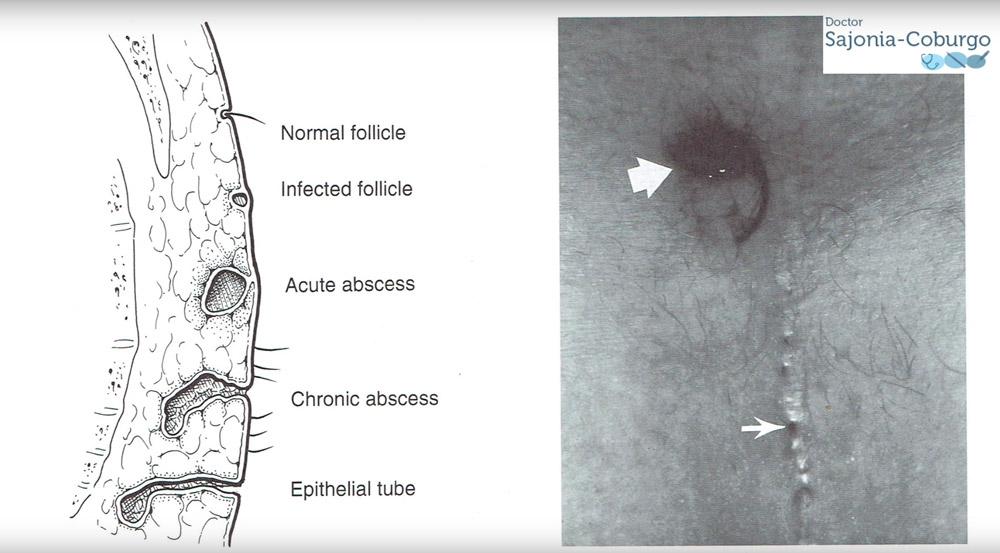distintas fases de un sinus pilonidal